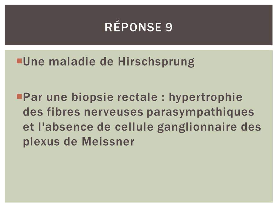 Une maladie de Hirschsprung Par une biopsie rectale : hypertrophie des fibres nerveuses parasympathiques et l'absence de cellule ganglionnaire des ple