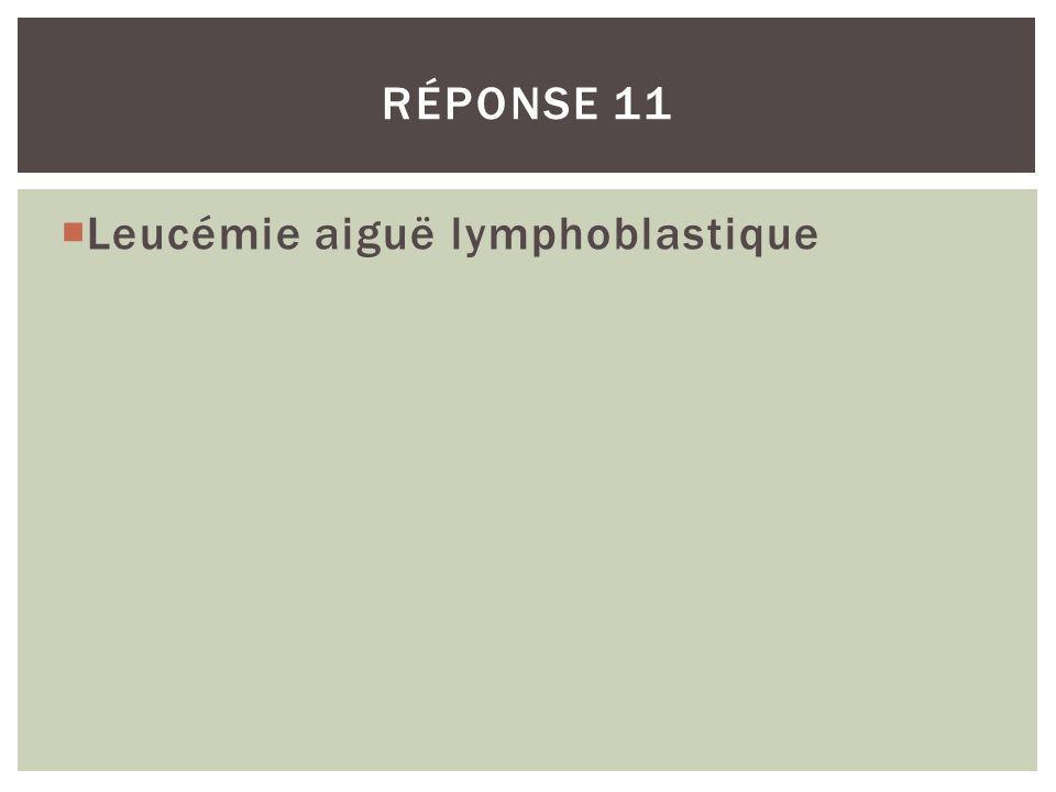 Leucémie aiguë lymphoblastique RÉPONSE 11