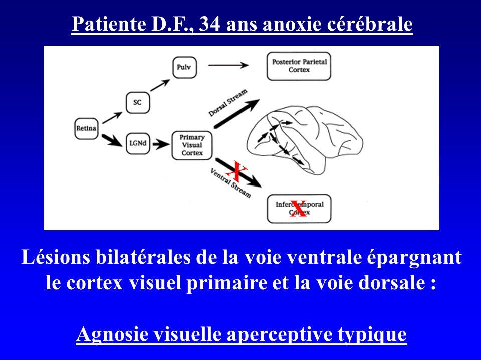 X X Patiente D.F., 34 ans anoxie cérébrale Lésions bilatérales de la voie ventrale épargnant le cortex visuel primaire et la voie dorsale : Agnosie visuelle aperceptive typique