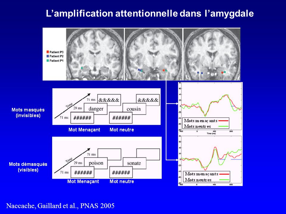 Lamplification attentionnelle dans lamygdale Naccache, Gaillard et al., PNAS 2005