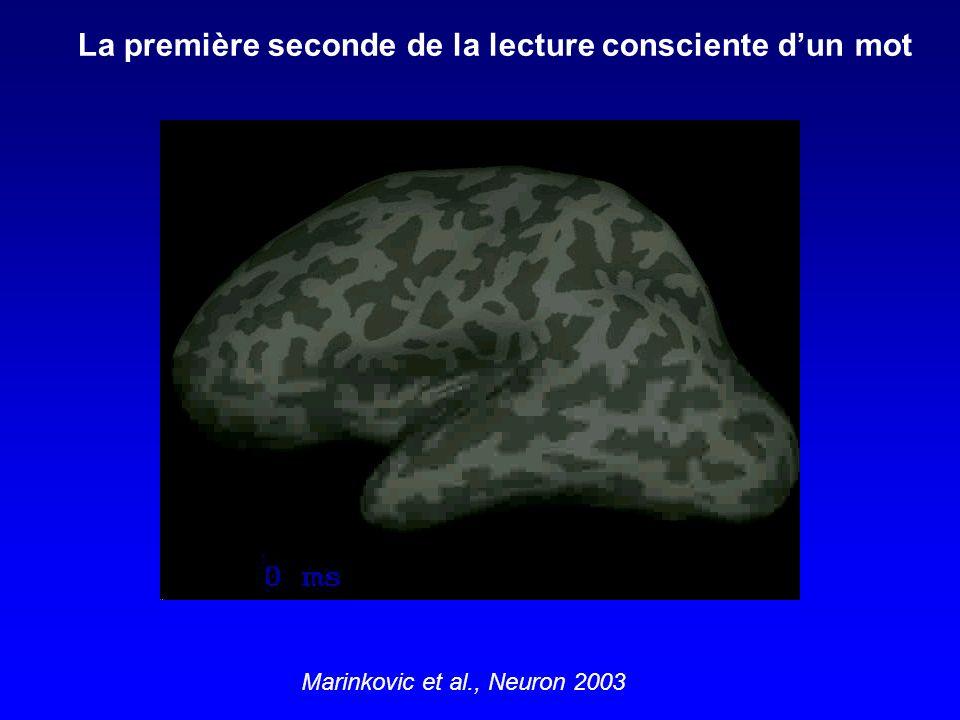 Aglioti et al., Current Biology 1995 Illusion dEbbinghaus Titchener Pince pouce-index non affectée par lillusion Dissociations dorso-ventrales chez le sujet sain, ou les neurosciences des illusions visuelles :
