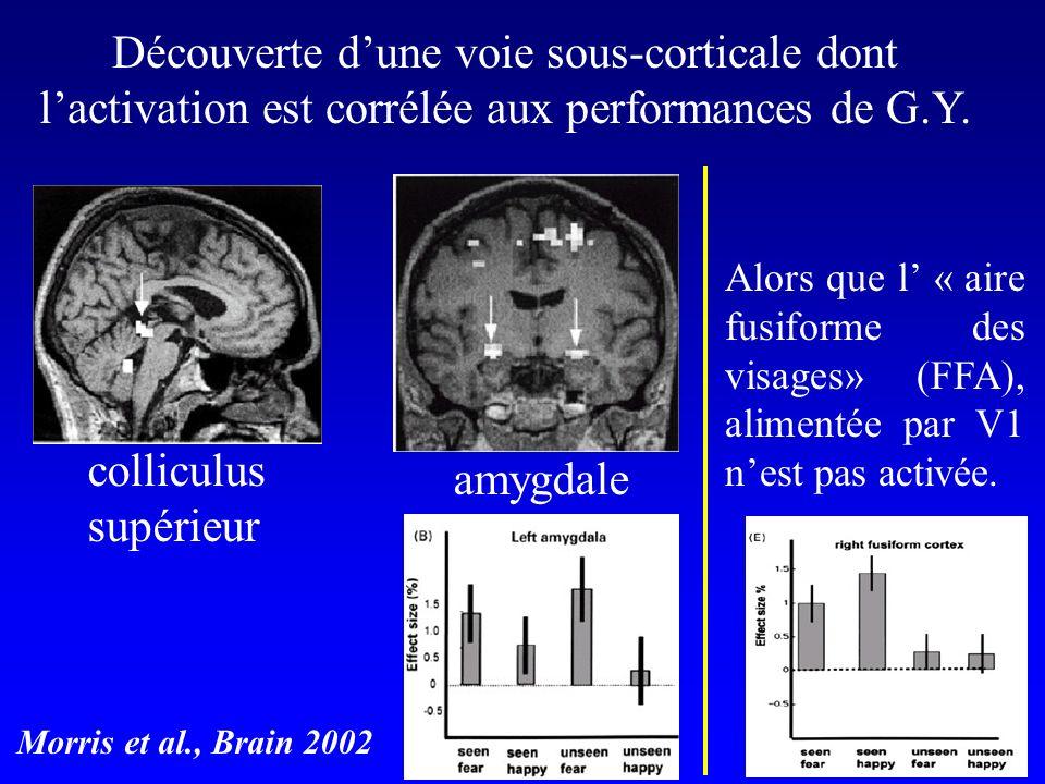 Cette voie, résiduelle chez GY, existe également chez lhomme sain Les sujets ne perçoivent consciemment quun visage émotionellement neutre (présentation «subliminale») … 33 ms 167 ms Whalen et al.
