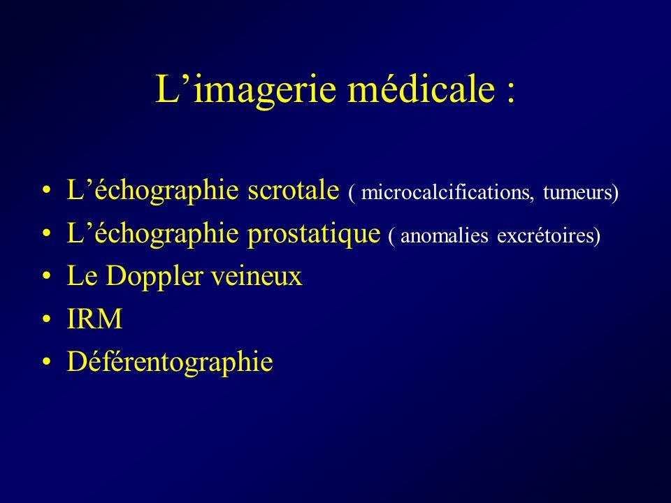 Limagerie médicale : Léchographie scrotale ( microcalcifications, tumeurs) Léchographie prostatique ( anomalies excrétoires) Le Doppler veineux IRM Dé