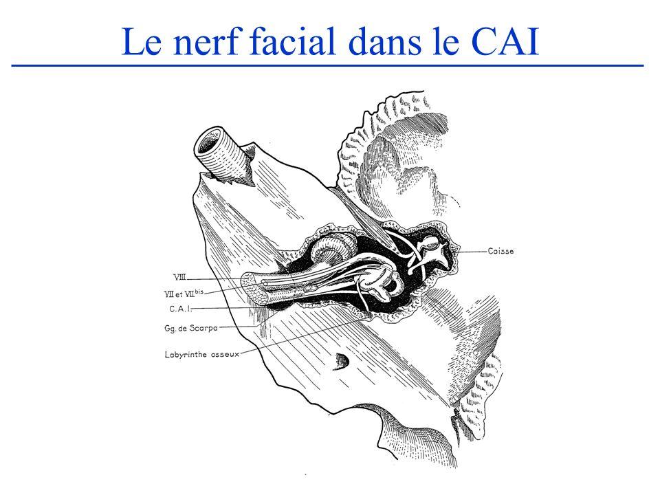 Le nerf facial dans le CAI