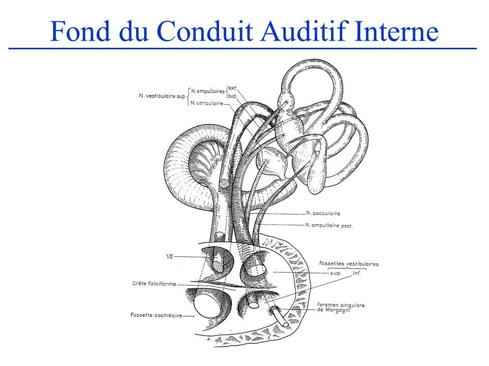Fond du Conduit Auditif Interne