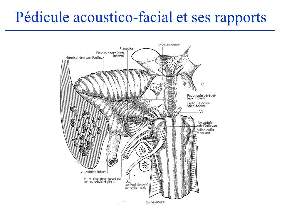 Le nerf acoustique (2) Trajet : –Le VIII traverse lespace ponto-cérébelleux, de son émergence à lentrée du CAI où il rejoint le VII et le VII bis (nerf intermédiaire de Wrisberg) pour former le pédicule acoustico- facial –Il pénètre ensuite dans le CAI situé à la face postérieure du rocher et long de 8 mm environ.