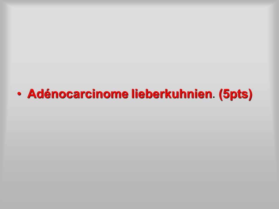 Adénocarcinome lieberkuhnien(5pts)Adénocarcinome lieberkuhnien. (5pts)