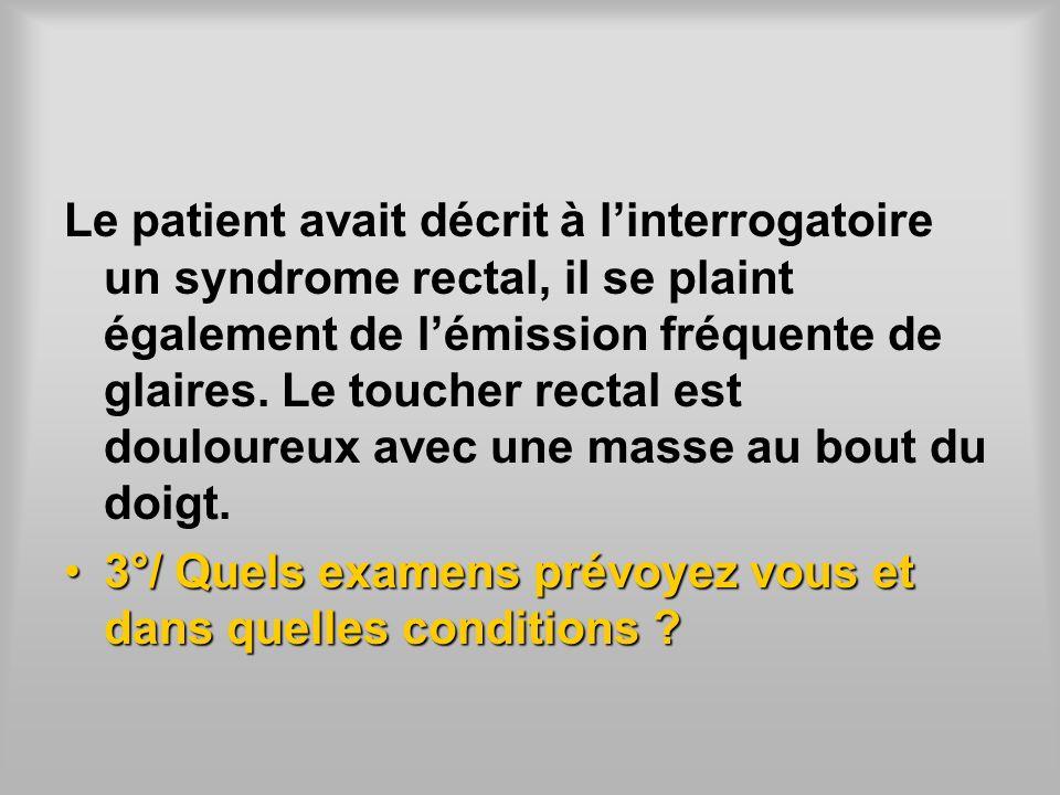 Le patient avait décrit à linterrogatoire un syndrome rectal, il se plaint également de lémission fréquente de glaires. Le toucher rectal est douloure
