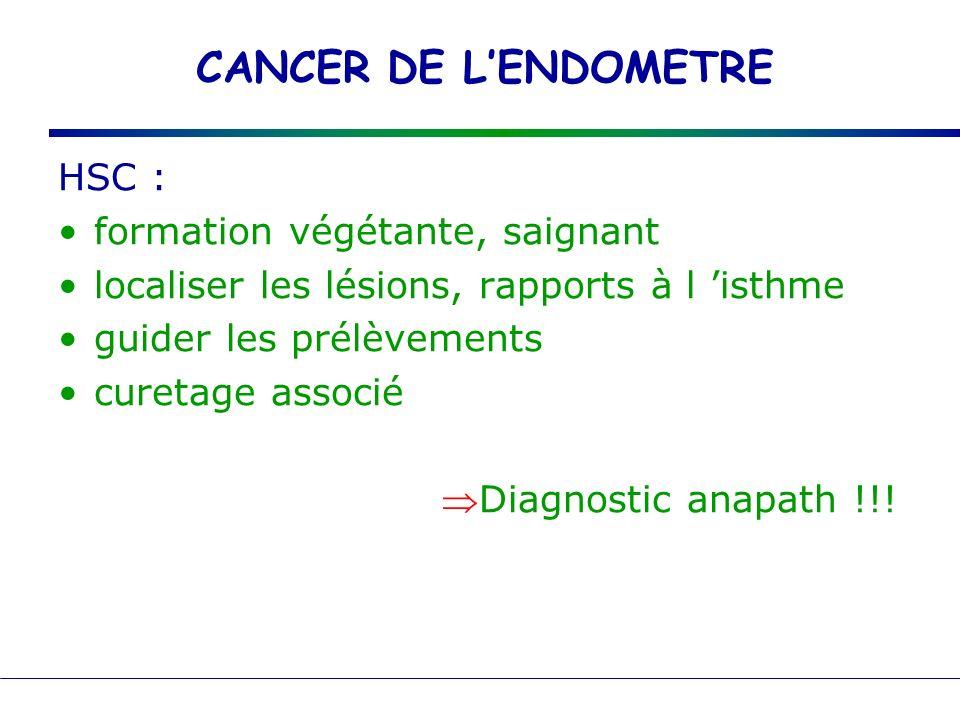 CANCER DE LENDOMETRE HSC : formation végétante, saignant localiser les lésions, rapports à l isthme guider les prélèvements curetage associé Diagnosti