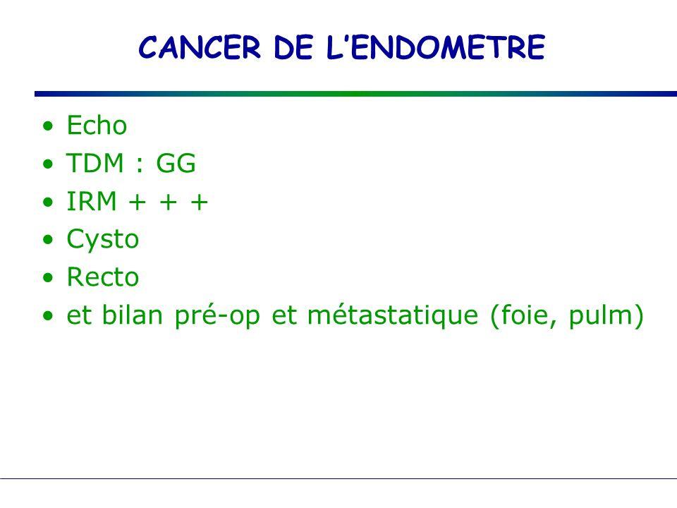 CANCER DE LENDOMETRE Echo TDM : GG IRM + + + Cysto Recto et bilan pré-op et métastatique (foie, pulm)