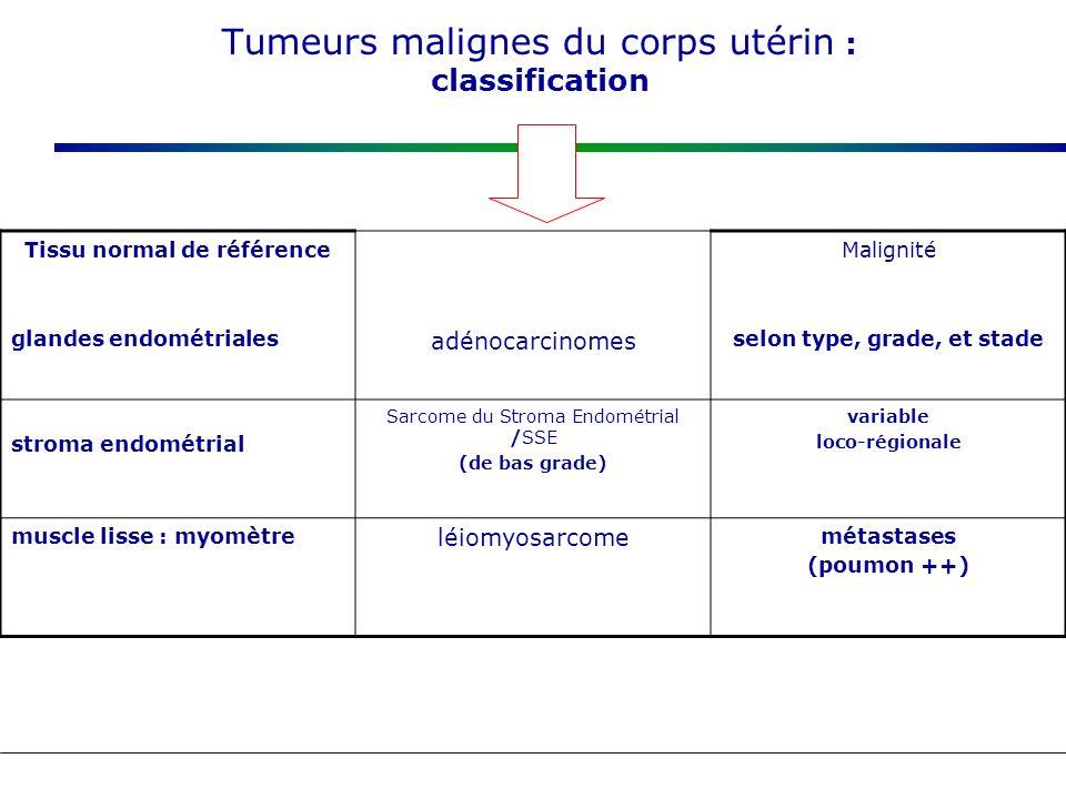 Tumeurs malignes du corps utérin : classification Tissu normal de référence glandes endométriales adénocarcinomes Malignité selon type, grade, et stad