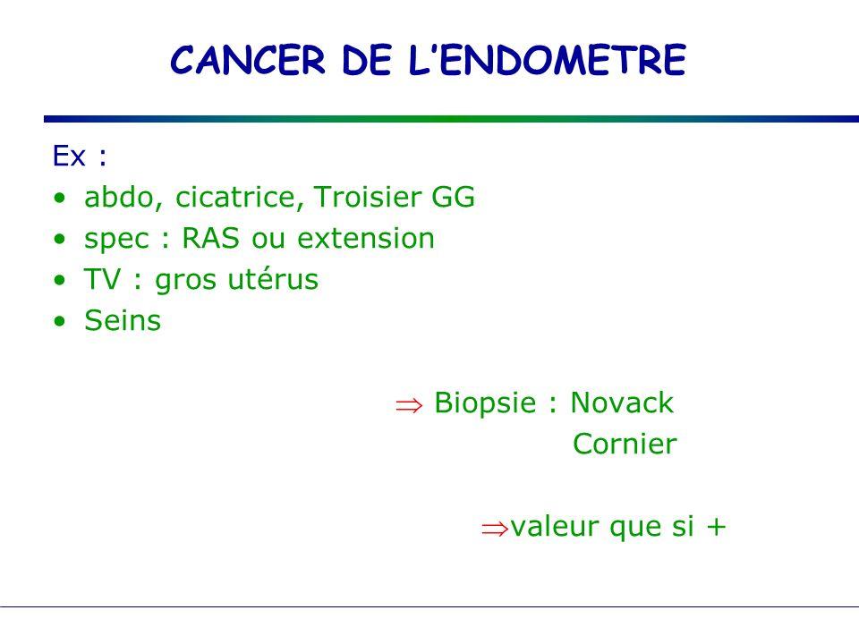 CANCER DE LENDOMETRE Ex : abdo, cicatrice, Troisier GG spec : RAS ou extension TV : gros utérus Seins Biopsie : Novack Cornier valeur que si +