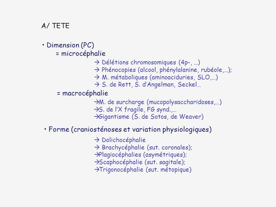 A/ TETE Dimension (PC) = microcéphalie Délétions chromosomiques (4p-, …) Phénocopies (alcool, phénylalanine, rubéole,…); M. métaboliques (aminoaciduri