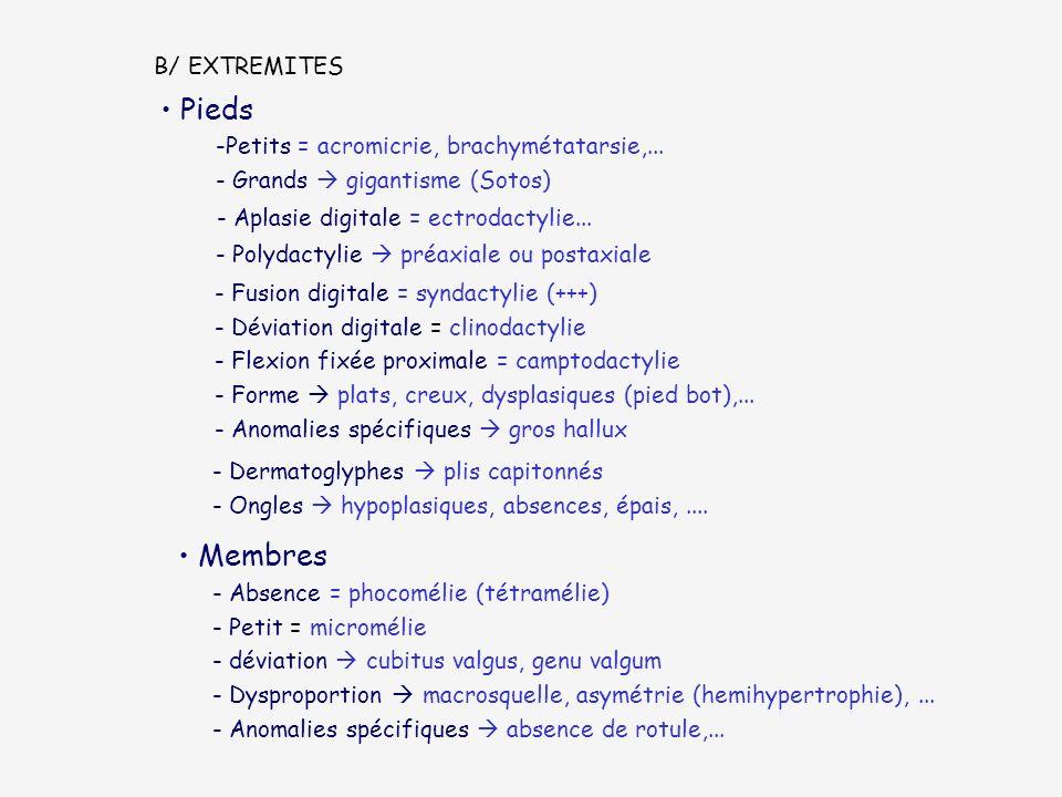 B/ EXTREMITES Pieds - Aplasie digitale = ectrodactylie... -Petits = acromicrie, brachymétatarsie,... - Grands gigantisme (Sotos) - Polydactylie préaxi
