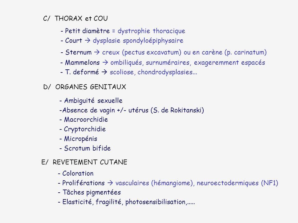 C/ THORAX et COU - Petit diamètre = dystrophie thoracique - Court dysplasie spondyloépiphysaire - Sternum creux (pectus excavatum) ou en carène (p. ca