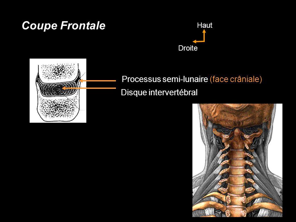 Processus semi-lunaire (face crâniale) Disque intervertébral Coupe Frontale Haut Droite