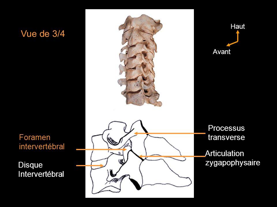 LATLAS (C1) (Vue crâniale) Arc dorsal Foramen transversaire Sillon de lartère vertébrale Fovéa crâniale (concave-condyle de los occipital) Fossette de la dent de laxis (fovéa dentis) Haut Gauche