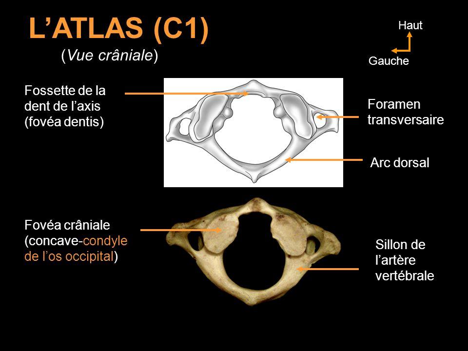 LATLAS (C1) (Vue crâniale) Arc dorsal Foramen transversaire Sillon de lartère vertébrale Fovéa crâniale (concave-condyle de los occipital) Fossette de