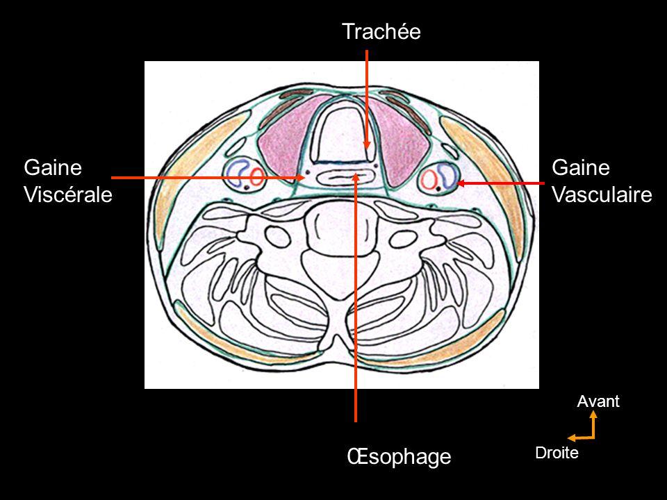 Voile du palais Muscles de la trompe auditive tenseur du voile élévateur du voile Arcs palato-glosses palato-glosse Arcs palato-pharygiens palato-pharyngien Muscle uvulaire V2 sauf pour larc palato-glosse (IX) X sauf pour le M tenseur du voile (V3)