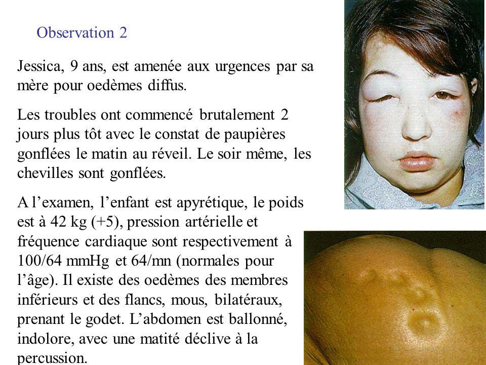 Observation 2 Jessica, 9 ans, est amenée aux urgences par sa mère pour oedèmes diffus. Les troubles ont commencé brutalement 2 jours plus tôt avec le