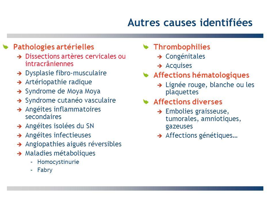 Autres causes identifiées Pathologies artérielles Dissections artères cervicales ou intracrâniennes Dysplasie fibro-musculaire Artériopathie radique S