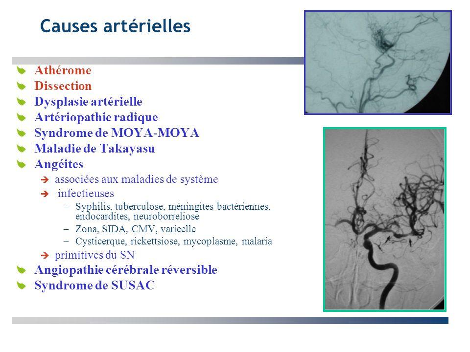 Causes artérielles Athérome Dissection Dysplasie artérielle Artériopathie radique Syndrome de MOYA-MOYA Maladie de Takayasu Angéites associées aux mal