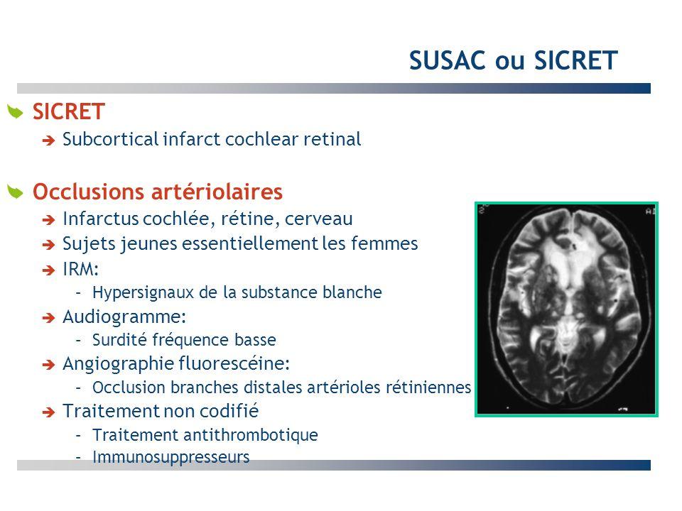 SUSAC ou SICRET SICRET Subcortical infarct cochlear retinal Occlusions artériolaires Infarctus cochlée, rétine, cerveau Sujets jeunes essentiellement