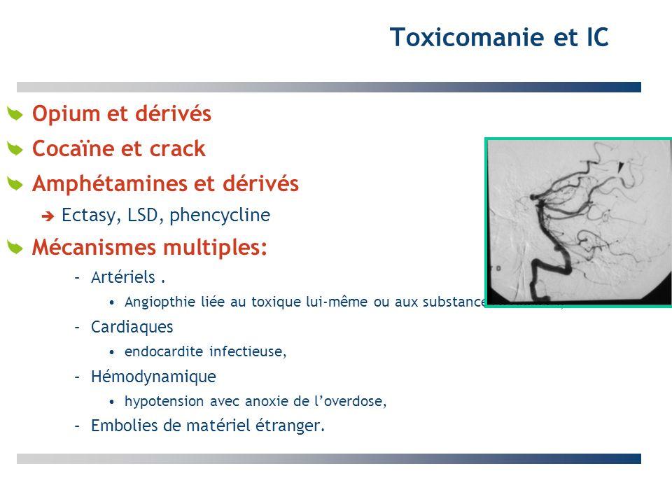 Toxicomanie et IC Opium et dérivés Cocaïne et crack Amphétamines et dérivés Ectasy, LSD, phencycline Mécanismes multiples: –Artériels. Angiopthie liée
