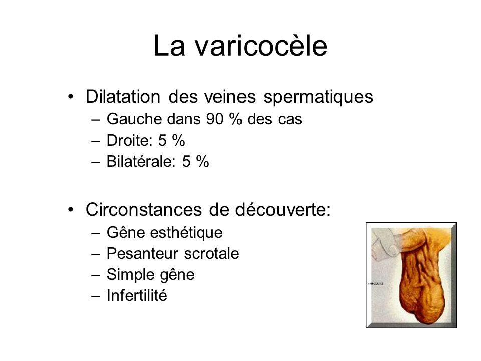 La varicocèle Dilatation des veines spermatiques –Gauche dans 90 % des cas –Droite: 5 % –Bilatérale: 5 % Circonstances de découverte: –Gêne esthétique