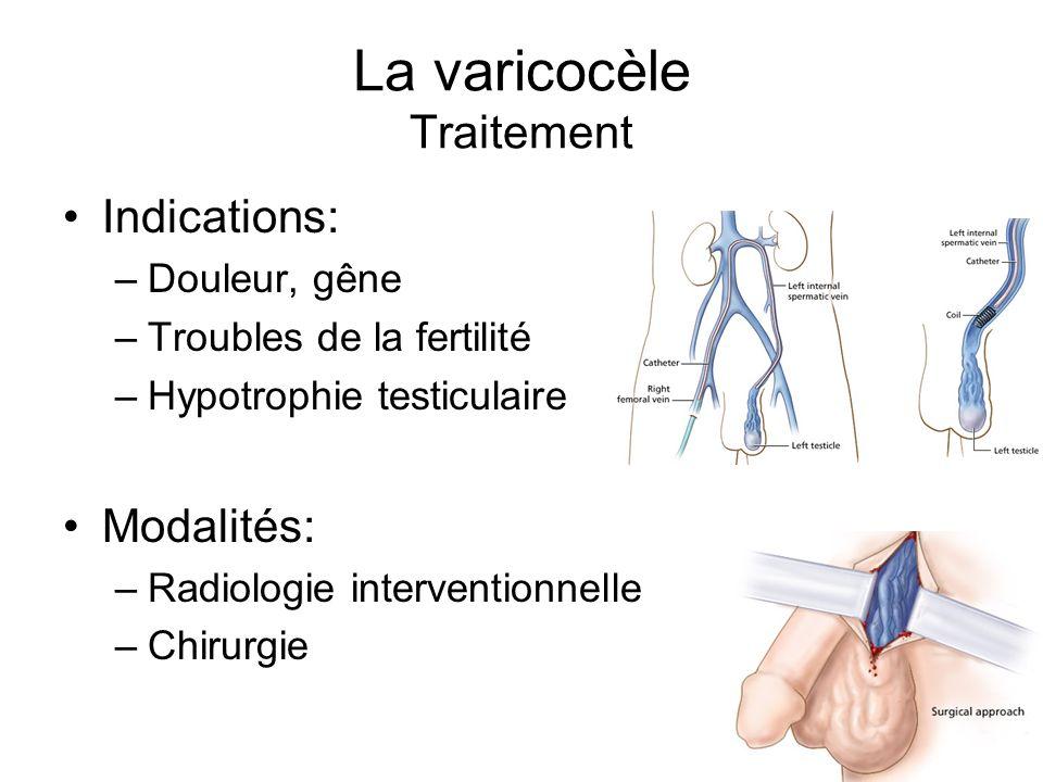 La varicocèle Traitement Indications: –Douleur, gêne –Troubles de la fertilité –Hypotrophie testiculaire Modalités: –Radiologie interventionnelle –Chi