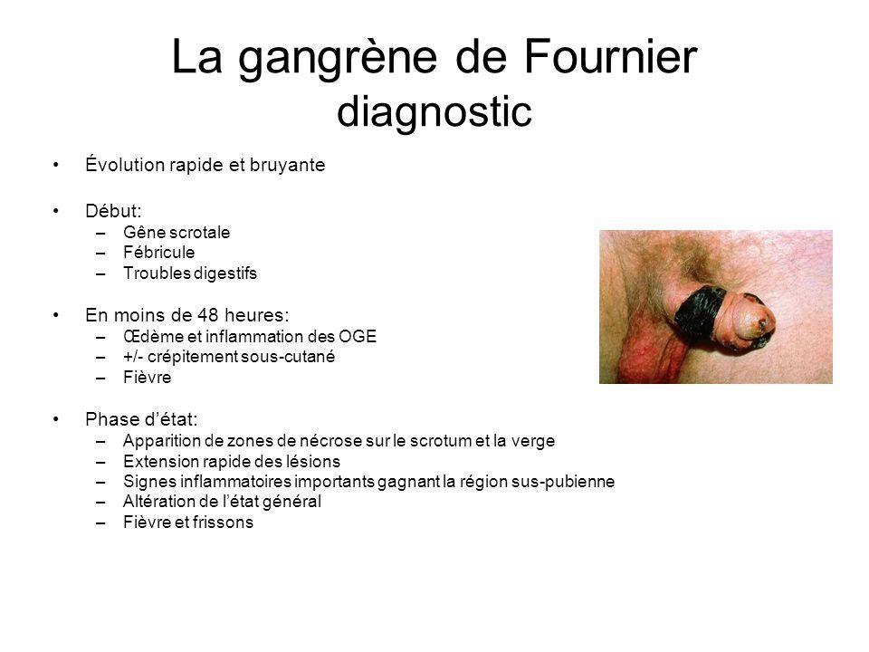 La gangrène de Fournier diagnostic Évolution rapide et bruyante Début: –Gêne scrotale –Fébricule –Troubles digestifs En moins de 48 heures: –Œdème et