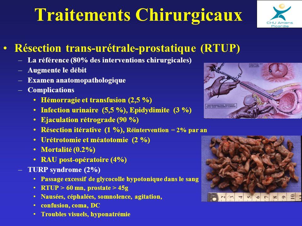 Traitements Chirurgicaux Résection trans-urétrale-prostatique (RTUP) –La référence (80% des interventions chirurgicales) –Augmente le débit –Examen anatomopathologique –Complications Hémorragie et transfusion (2,5 %) Infection urinaire (5,5 %), Epidydimite (3 %) Ejaculation rétrograde (90 %) Résection itérative (1 %), Réintervention = 2% par an Urétrotomie et méatotomie (2 %) Mortalité (0.2%) RAU post-opératoire (4%) –TURP syndrome (2%) Passage excessif de glycocolle hypotonique dans le sang RTUP > 60 mn, prostate > 45g Nausées, céphalées, somnolence, agitation, confusion, coma, DC Troubles visuels, hyponatrémie