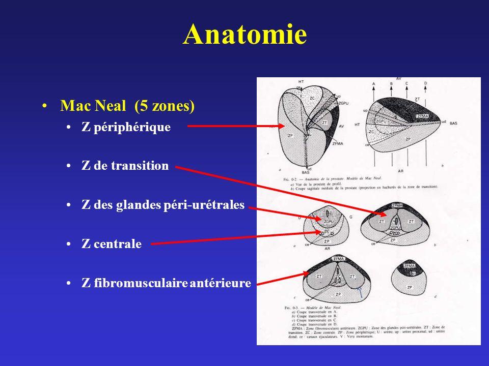 Histoire Naturelle de lHBP Calculs vésicaux –3.4% si HBP / 0.4% si pas dHBP Infection (5.2%) Détérioration du muscle vésical –RTUP/ Surveillance -> RTUP = moins bons résultats sur la symptomatologie et le débit (Flanigan 98) Incontinence (6.1% Hunter 1996) Insuffisance rénale (13.6% Mc Connell 1994) Hématurie (2.5% Hunter 1996) Rétention aigue durine (5.1% Hunter 1996) Complications