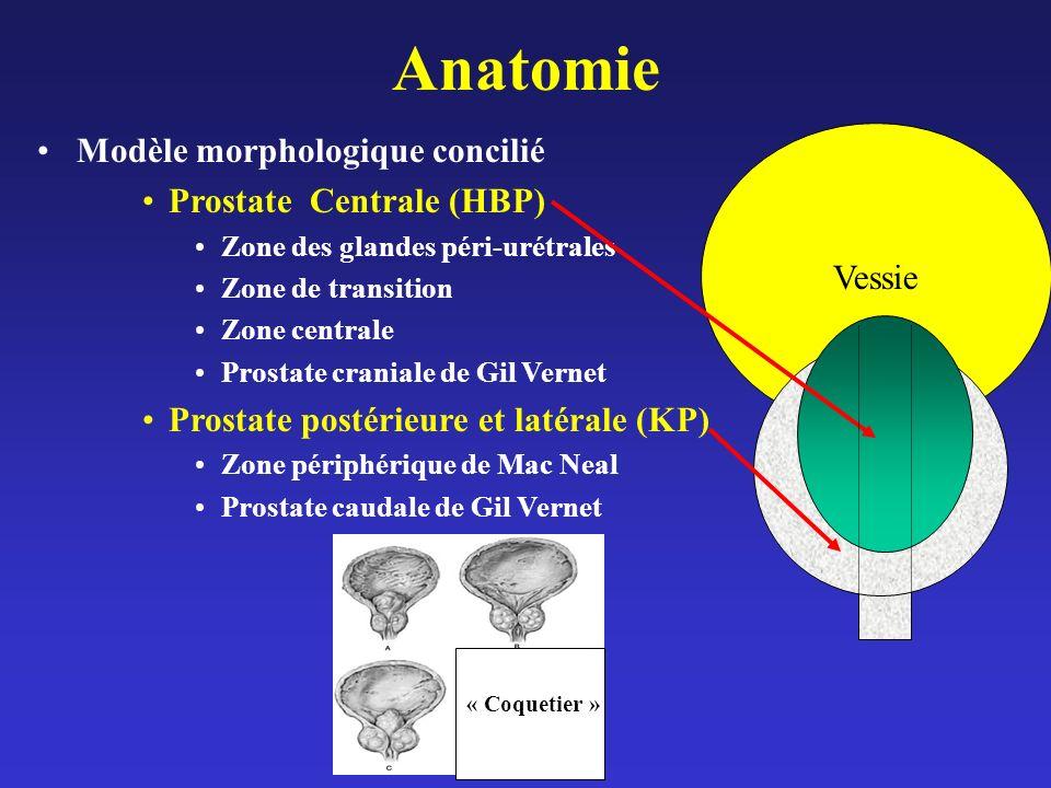 Vessie Anatomie Modèle morphologique concilié Prostate Centrale (HBP) Zone des glandes péri-urétrales Zone de transition Zone centrale Prostate crania