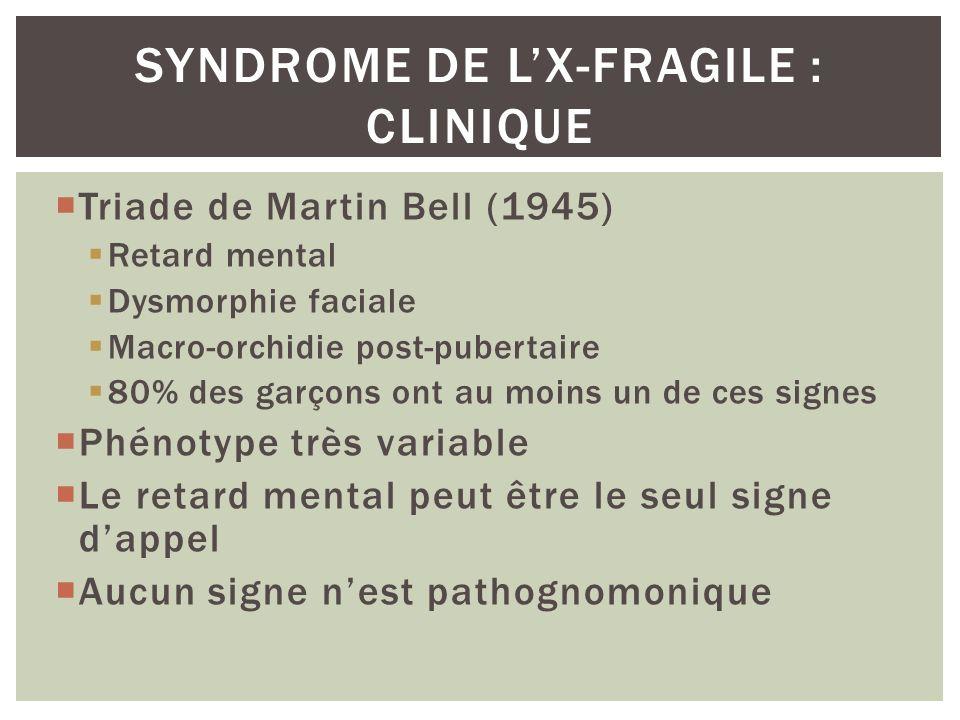 Triade de Martin Bell (1945) Retard mental Dysmorphie faciale Macro-orchidie post-pubertaire 80% des garçons ont au moins un de ces signes Phénotype t