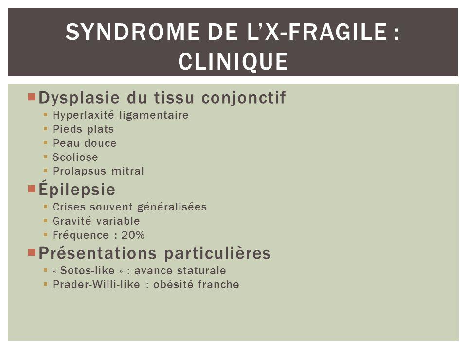 Dysplasie du tissu conjonctif Hyperlaxité ligamentaire Pieds plats Peau douce Scoliose Prolapsus mitral Épilepsie Crises souvent généralisées Gravité