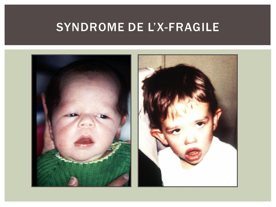SYNDROME DE LX-FRAGILE