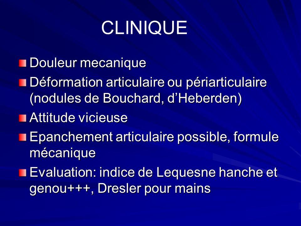 Douleur mecanique Déformation articulaire ou périarticulaire (nodules de Bouchard, dHeberden) Attitude vicieuse Epanchement articulaire possible, form