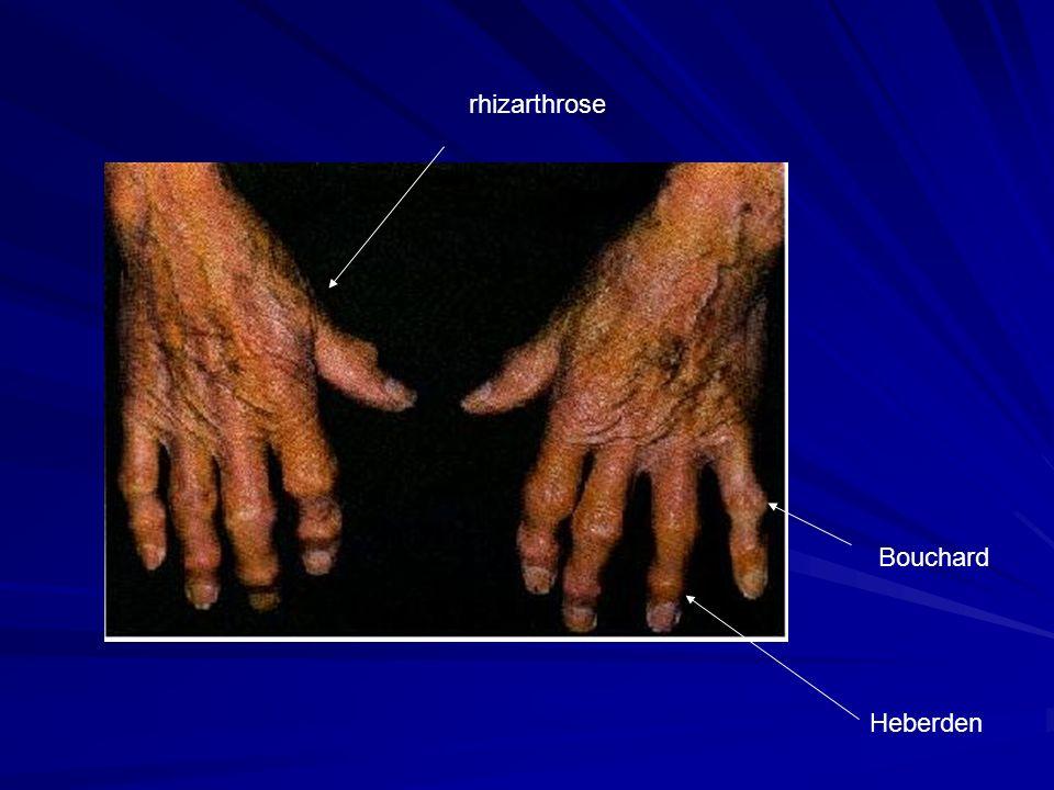 Bouchard Heberden rhizarthrose
