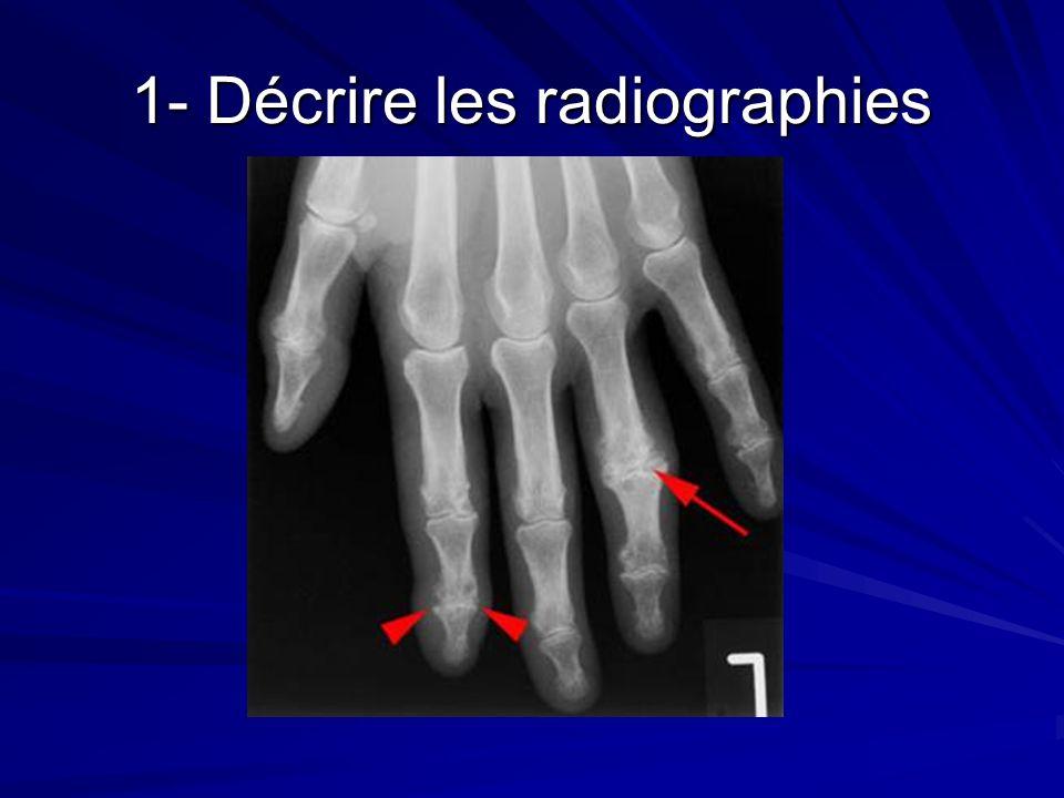 1- Décrire les radiographies