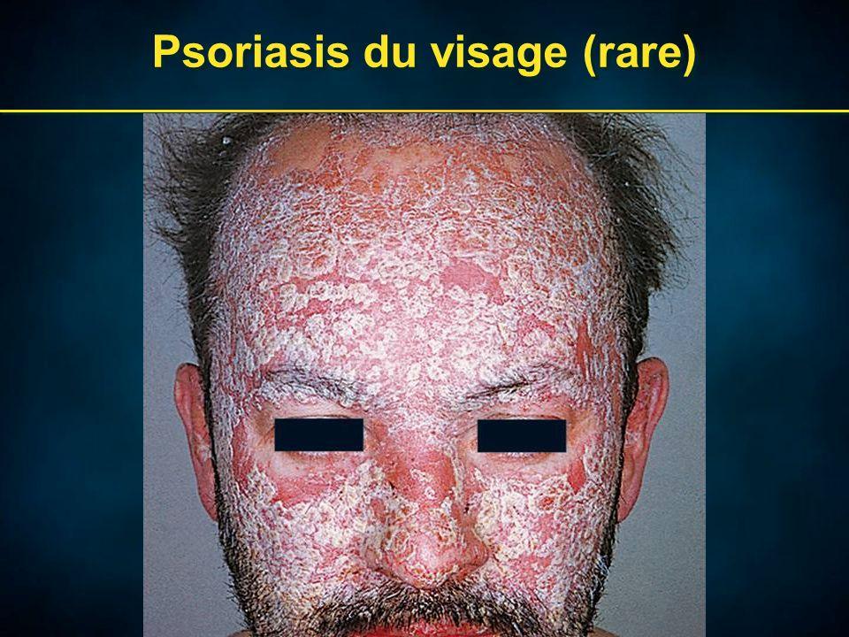 Psoriasis du visage (rare)