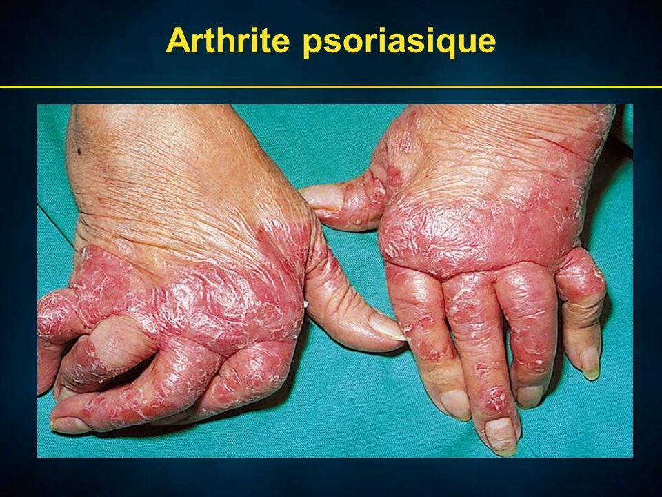 Arthrite psoriasique
