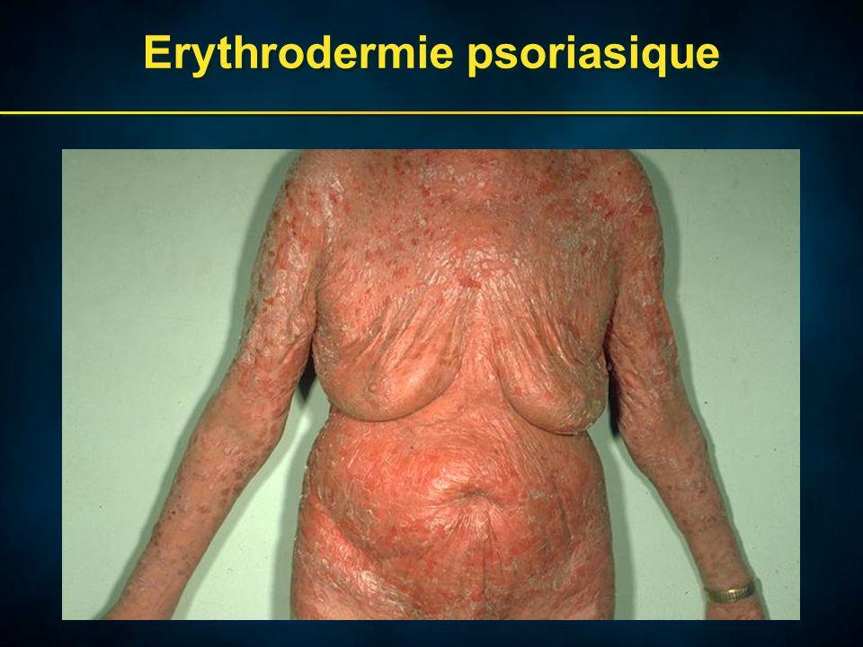 Erythrodermie psoriasique