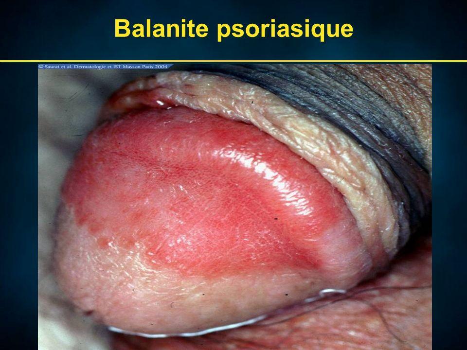 Balanite psoriasique