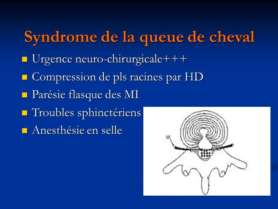 Syndrome de la queue de cheval Urgence neuro-chirurgicale+++ Urgence neuro-chirurgicale+++ Compression de pls racines par HD Compression de pls racine