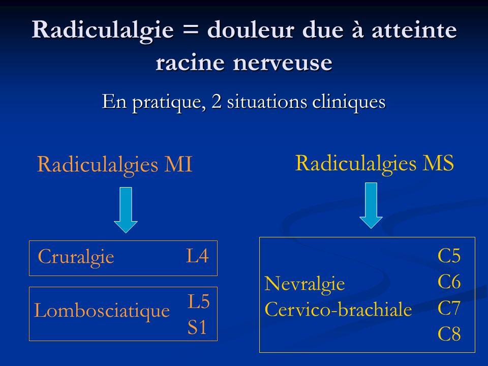 Radiculalgie = douleur due à atteinte racine nerveuse En pratique, 2 situations cliniques Radiculalgies MI Radiculalgies MS Lombosciatique L5 S1 Crura