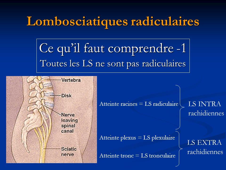 Lombosciatiques radiculaires Ce quil faut comprendre -1 Toutes les LS ne sont pas radiculaires Atteinte racines = LS radiculaire Atteinte plexus = LS