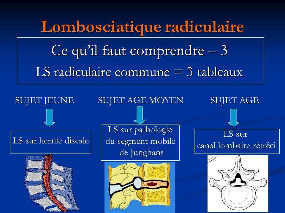 Lombosciatique radiculaire Ce quil faut comprendre – 3 LS radiculaire commune = 3 tableaux SUJET JEUNE LS sur hernie discale SUJET AGE MOYEN LS sur pa