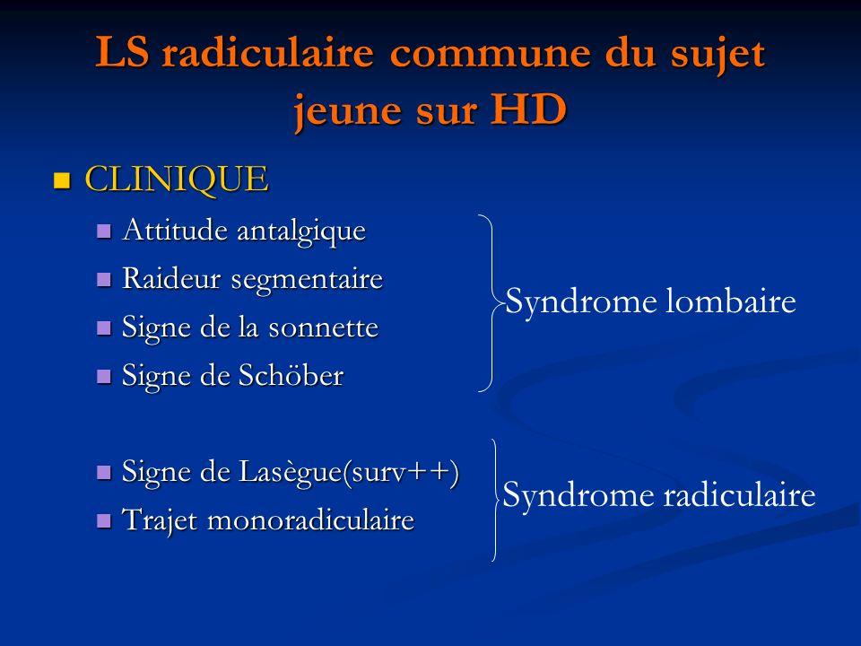 LS radiculaire commune du sujet jeune sur HD CLINIQUE CLINIQUE Attitude antalgique Attitude antalgique Raideur segmentaire Raideur segmentaire Signe d