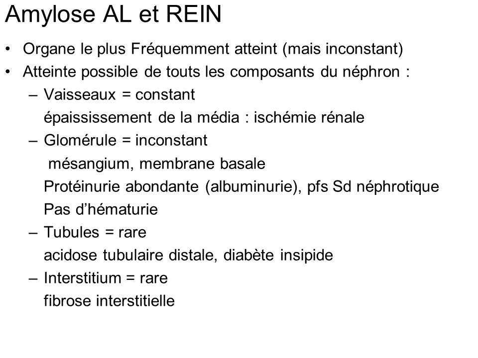 Amylose AL et REIN Organe le plus Fréquemment atteint (mais inconstant) Atteinte possible de touts les composants du néphron : –Vaisseaux = constant é